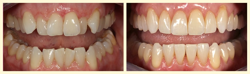 Close-up of a patient's smile before and after Invisalign® treatment.