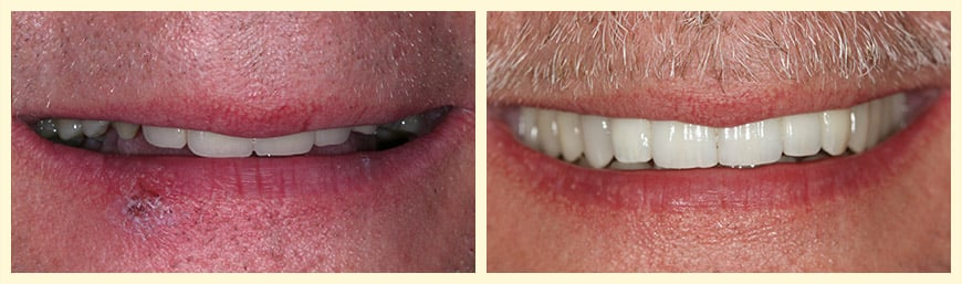 Full mouth reconstruction was used to enhance this patient's smile.