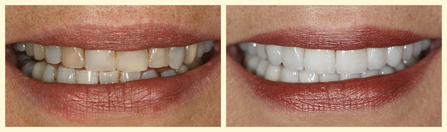 An actual patient of our Oakland, CA dentist who had full mouth reconstruction.