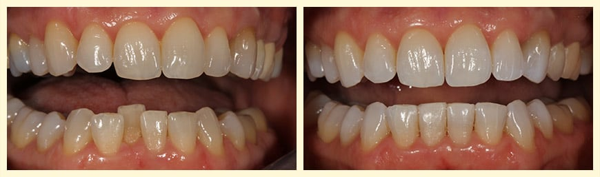 A real patient who's smile was enhanced with Invisalign®.