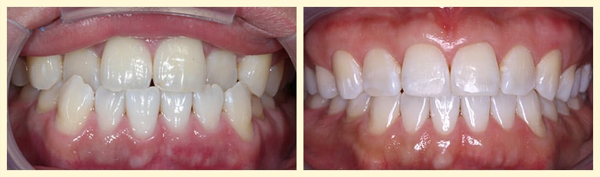 Invisalign® was used to straighten this patient's teeth.