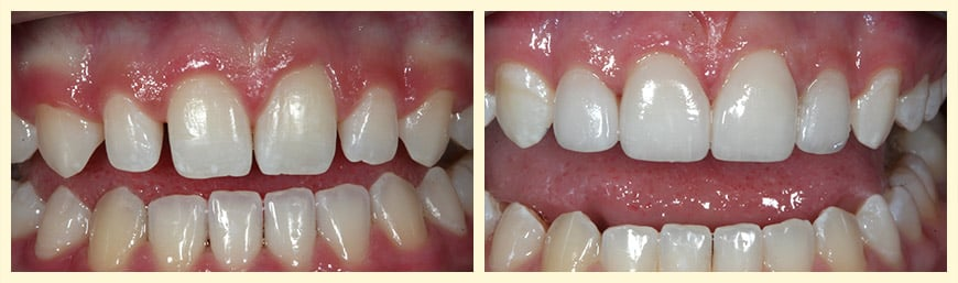 This real patient of Dr. Becker and Dr. Catalano had Veneers placed over Peg Laterals to enhance their smile.