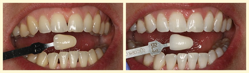 A patient before and after receiving Zoom! Whitening®