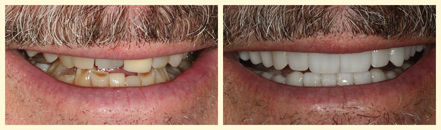 An actual patient of Montclair Smile Design in Oakland who's smile was restored through Full Mouth Reconstruction.
