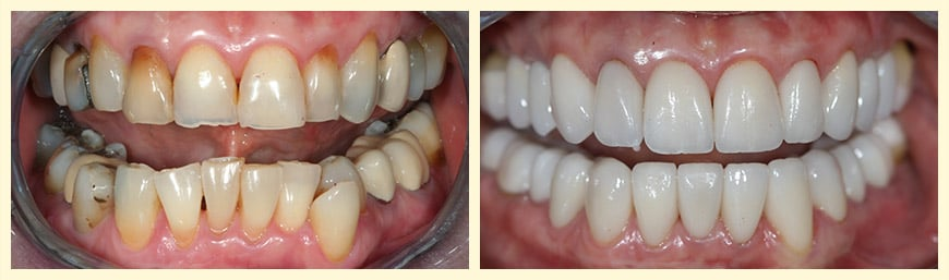 Invisalign® & Full Mouth Reconstruction were used to restore this actual patient's smile.