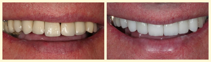 Full Mouth Reconstruction from our Oakland, CA dentist can transform your smile.
