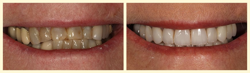 An actual patient of Montclair Smile Design who's teeth were restored with full mouth reconstruction.