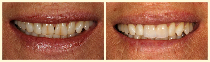 Invisalign with 2 veneers over peg laterals