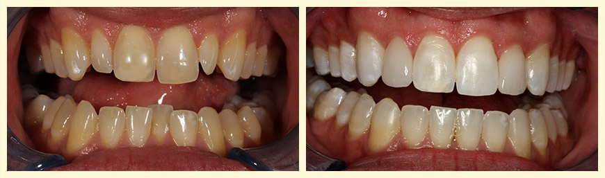Invisalign, Zoom Whitening and 2 Veneers over Peg Laterals
