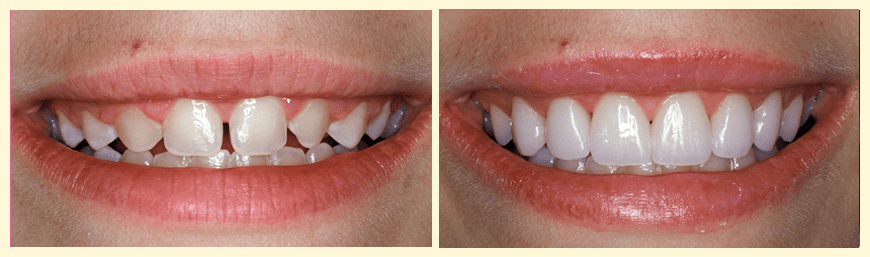 A patient with Missing lateral incisors received 4 veneers.