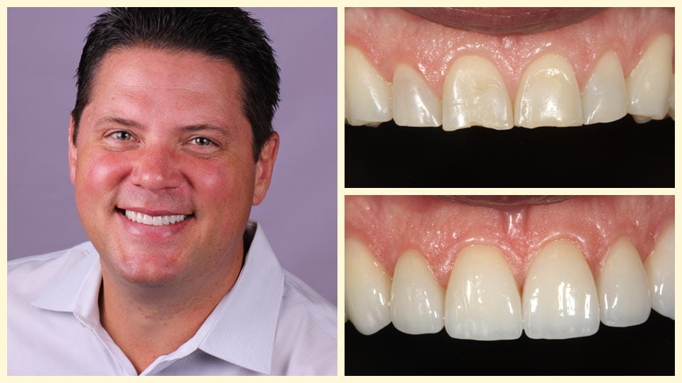 Chris, an actual patient before and after treatment with our Oakland dentists.