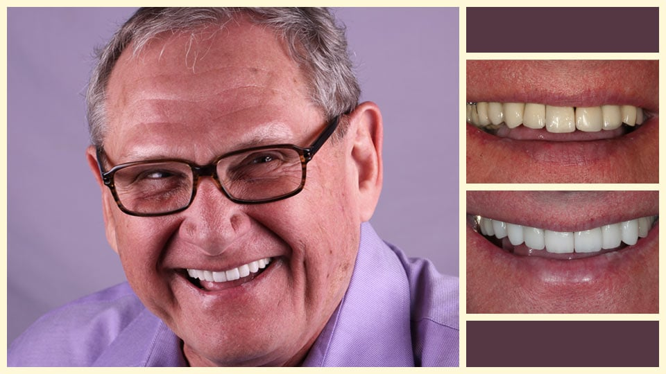 John is a real patient of our Oakland dentists, seen here before and after dental treatment.