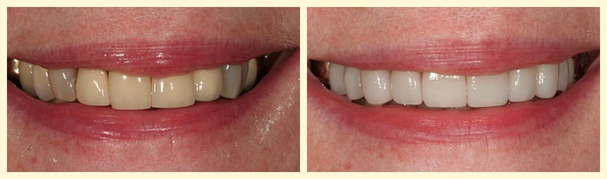 A before and after case study of Porcelain Veneers from our Oakland, CA dentist.