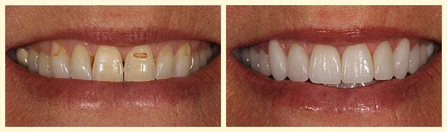 A real patient before and after dental veneers.