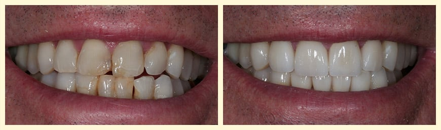 4 Upper and 4 Lower Veneers